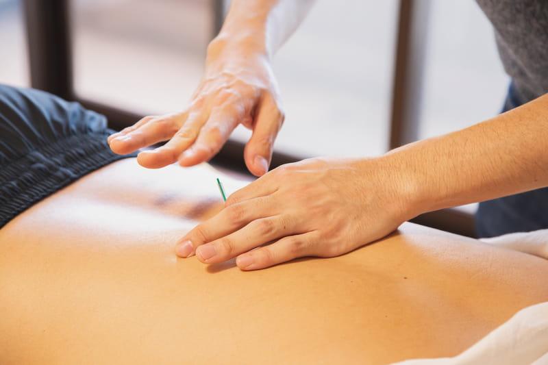 Agopuntura: le posizioni statiche della medicina convenzionale
