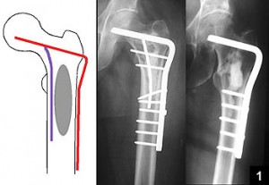 Il carico dopo la frattura: agopuntura, osteosintesi e recupero funzionale