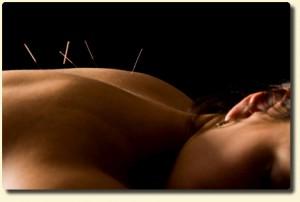 Agopuntura: trattamento di base consigliato per numerose patologie