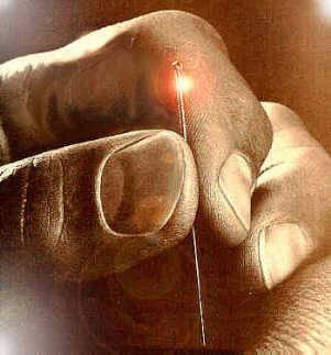 agopuntura come funziona