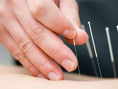 agopuntura e riabilitazione