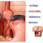 Ernia Iatale, agopuntura e fitoterapia: la cura secondo la medicina tradizionale cinese
