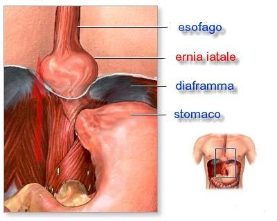 Frattura spinale in reparto di petto